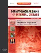 Dermatological Signs of Internal Disease E-Book (ebook)