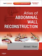 Atlas of Abdominal Wall Reconstruction E-Book (ebook)