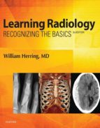 Learning Radiology E-Book (ebook)