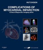 Complications of Myocardial Infarction E-Book (ebook)
