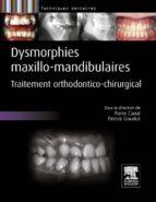 Dysmorphies maxillo-mandibulaires (ebook)