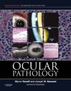 Ocular Pathology E-Book (ebook)