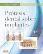 Prótesis dental sobre implantes (ebook)
