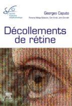 DÉCOLLEMENTS DE RÉTINE