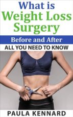 What Is Weight Loss Surgery: All You Need To Know Before And After (ebook)