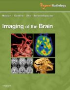 Imaging of the Brain E-Book (ebook)