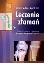 Leczenie złamań (ebook)