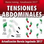 Hernia inguinal - Actualización 2017 (ebook)