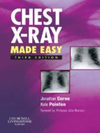 Chest X-Ray Made Easy E-Book (eBook)